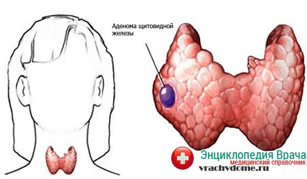 Аденома щитовидной железы -одна из причин тиреотоксикоза