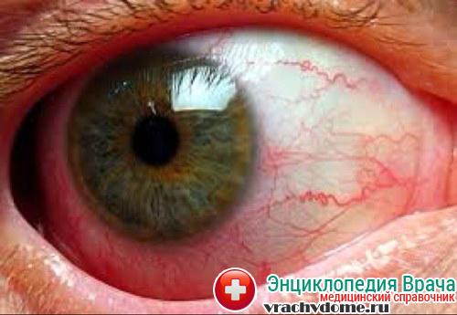 Уевит - воспаление глаза