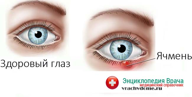 Ячмень на глазу чаще всего появляется из-за инфекции вызванной золотистым стафилоккоком